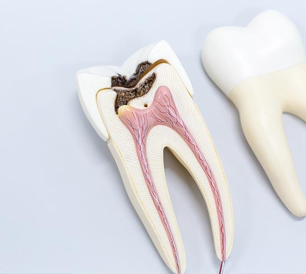 Causas de la caries dental