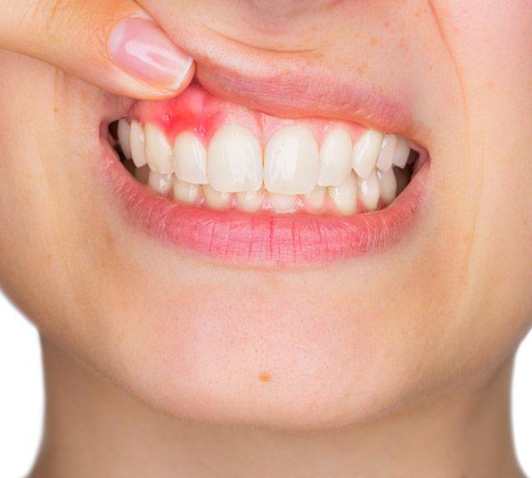 Encías sangrantes periodontitis