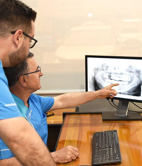 Radiografía implantes dentales