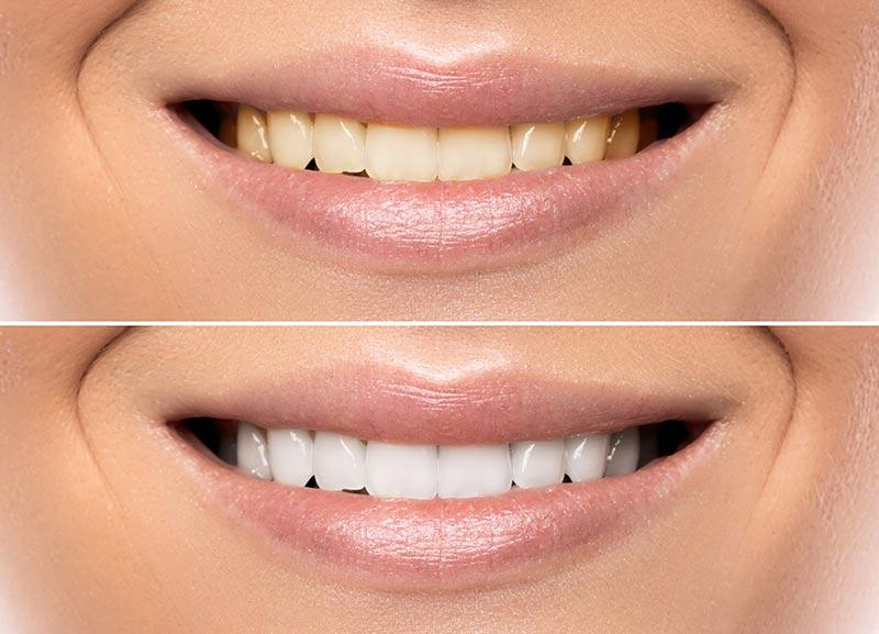 Antes-después del blanqueamiento dental