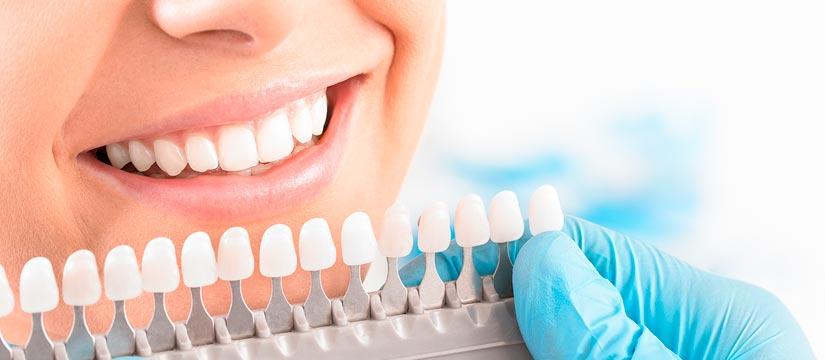 Tonos de blanqueamiento dental