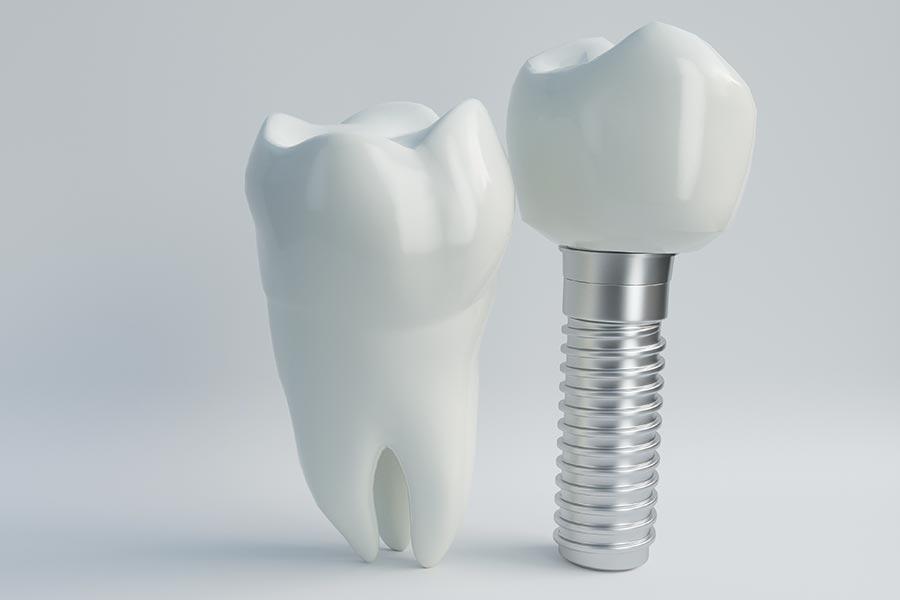 Inmplantes dentales inmediatos