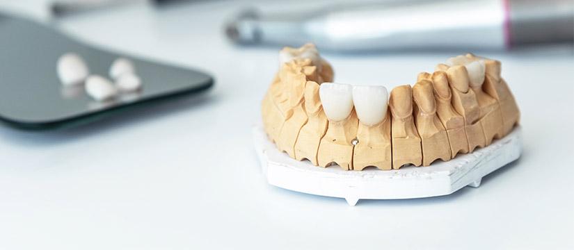 ¿Puedo corregir la posición de mis dientes con carillas dentales?