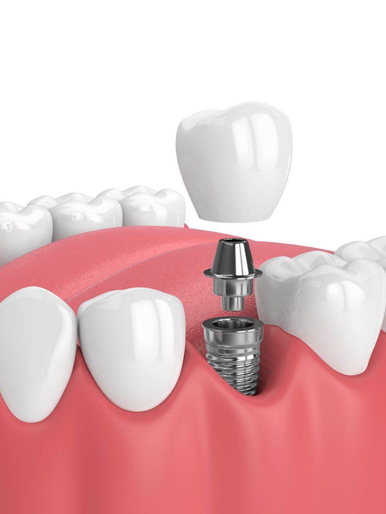 Preguntas frecuentes sobre los implantes dentales